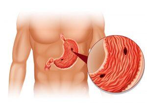 Язва желудка (helicobacter pylori)