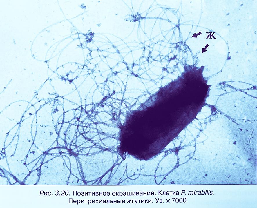Энтеробактерии p.mirabilis