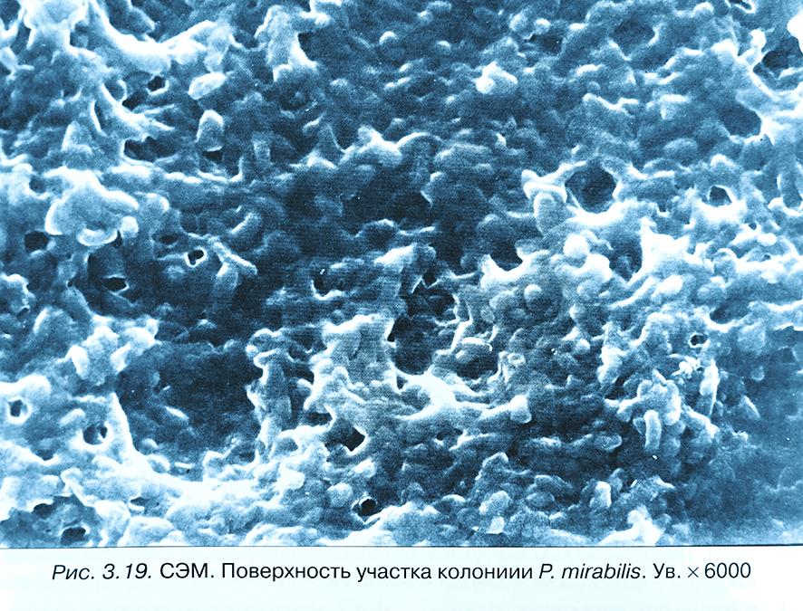 Протейная инфекция: причины, развитие, опасность для организма