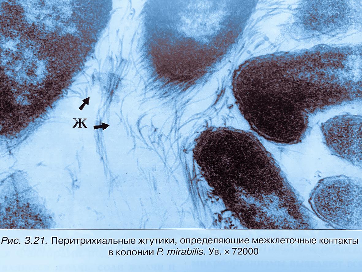 Как можно заразиться протейной инфекцией