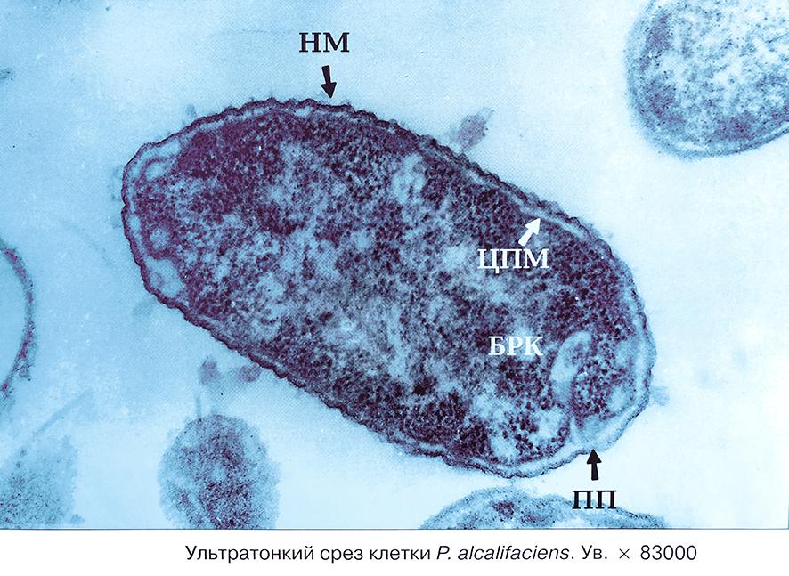 Бактерия Протей Proteus alcalifaciens