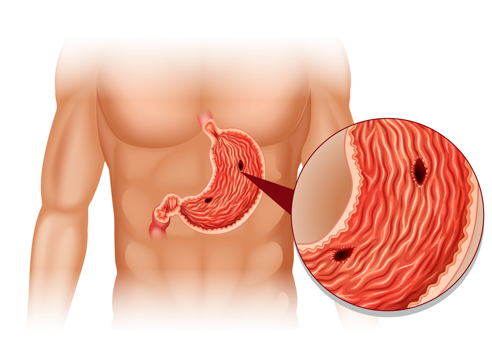 To help with treatment, take Aprazol will help in the treatment of ulcers.