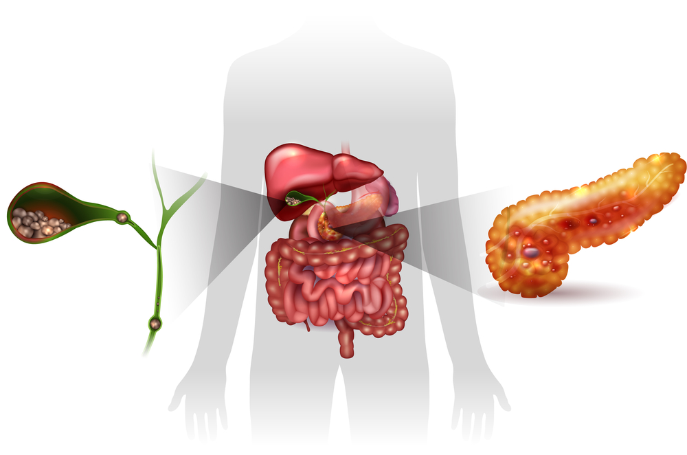 Нормофлорины при панкреатите